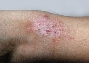 מחלות עור